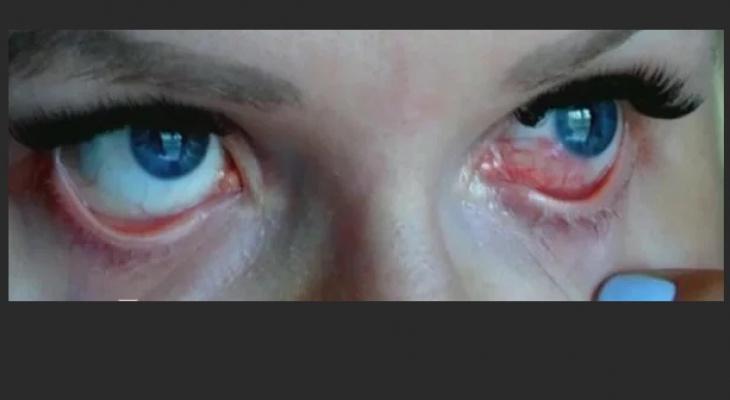 Жительница Владимира едва не ослепла после ламинирования ресниц