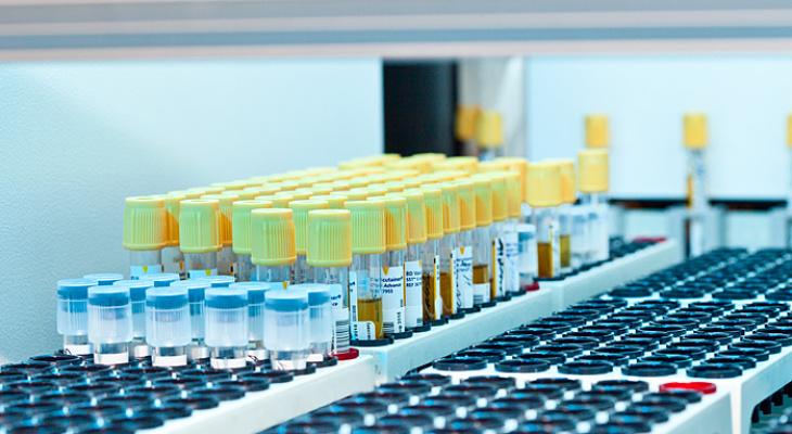 Владимирцам доступна специальная цена на биохимию крови
