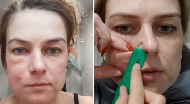 После уколов красоты женщина из Владимира попала в больницу
