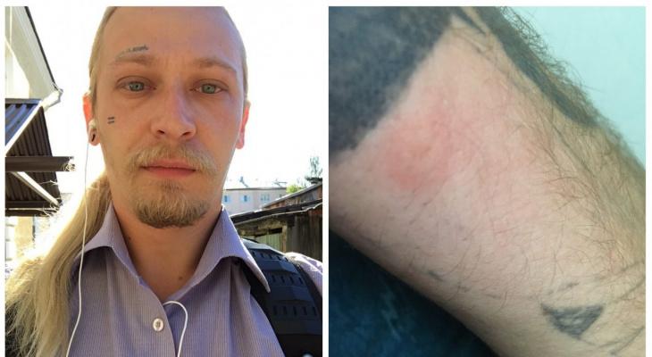 В Юрьев-Польском на людей нападают клещи